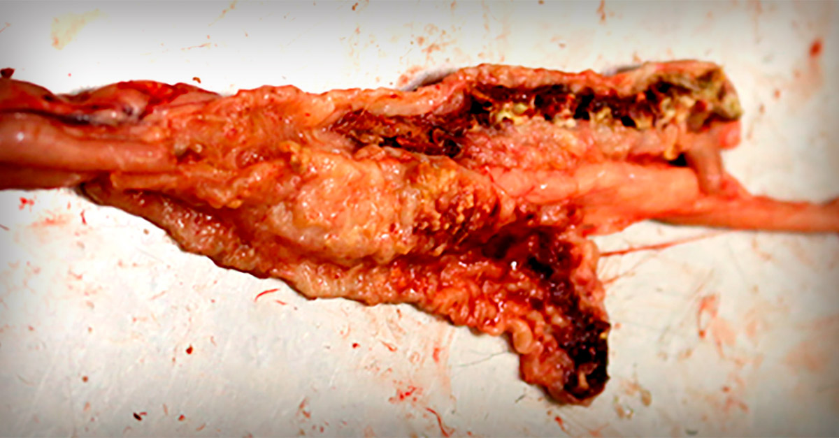 close image of of eimeria tenella lesion degree 4 in poultry