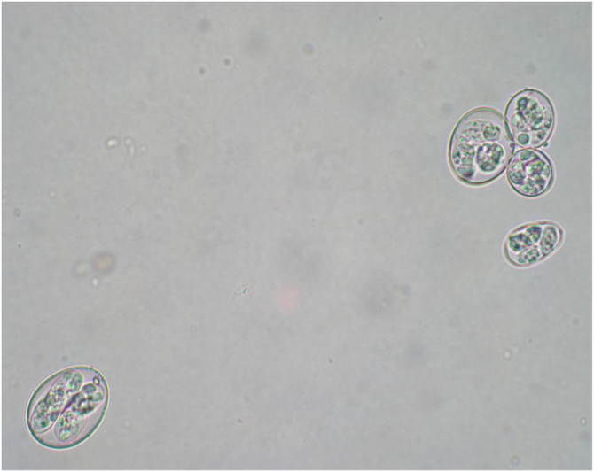 eimeria parasite example observed